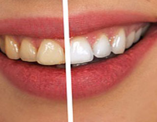 Teeth whitening at Bay Hills Family Densitry